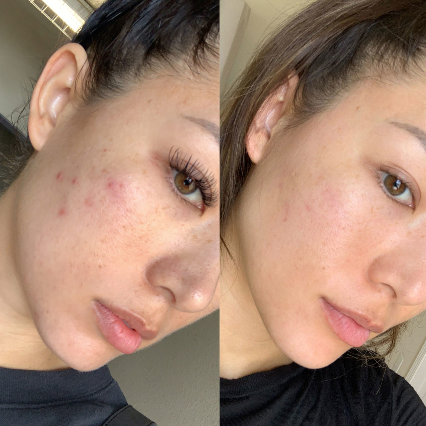 acne, skinceuticals, aging skin, before and after, skin discoloration, aging skin, fine lines, oily skin, beauty, skincare, morning and night routine